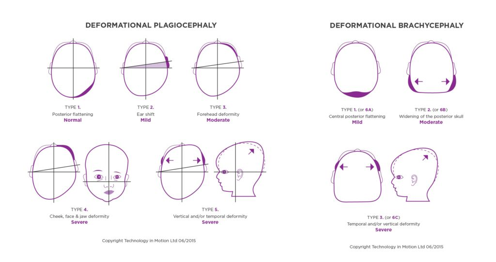 Classification of Plagiocephaly; Argenta scale